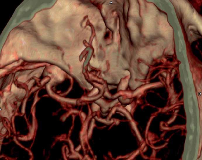 CT angiografie – prokázala výduť na střední mozkové tepně vlevo velikosti 13 × 11 × 10 mm.