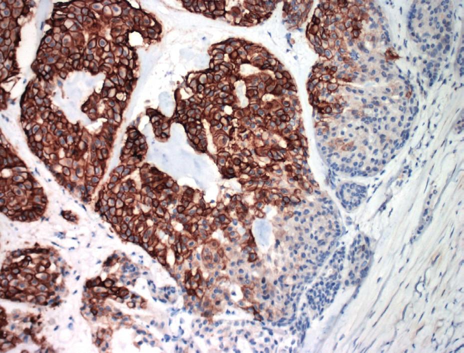 Membránová pozitivita CA IX v bunkách invazívneho duktálneho karcinómu prsníka