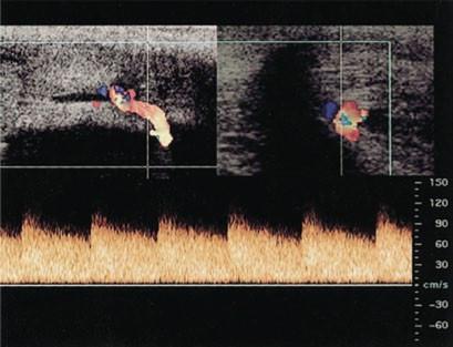 Nález na barevném dopplerovském a spektrálním ultrazvuku u pacienta s vysokoprůtokovým priapizmem ukazuje maximální systolickou a nejvyšší konečnou diastolickou rychlost v kavernózní arterii (CA) zásobující arteriovenózní píštěl (AVF).