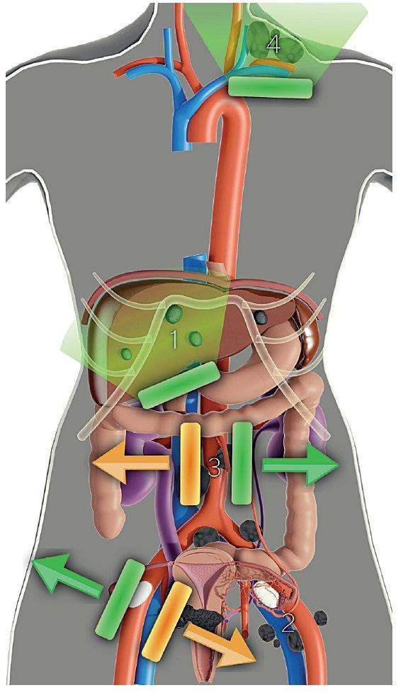 Ultrazvukové stanovení rozsahu zhoubného nádoru děložního hrdla v pánvi, břišní dutině a extraabdominálně (vyšetření konvexní a lineární sondou)