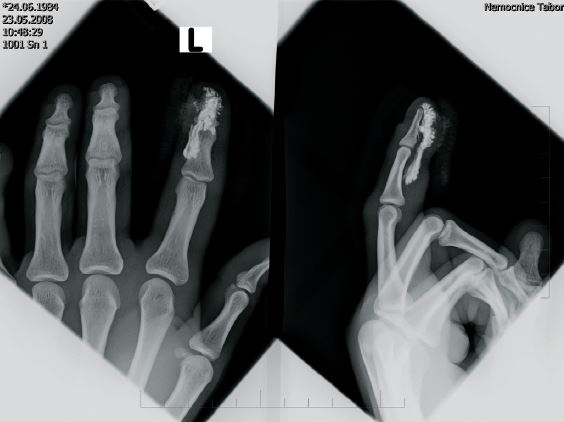 Rentgenový snímek 2. prstu pravé ruky s rentgen kontrasní cizí látkou v měkkých tkáních