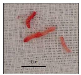 Odebrané bioptické vzorky. Fig. 3. Bioptic samples.