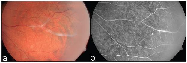 Neaktivní vaskulitida u pacienta s Crohnovou nemocí na barevném snímku očního pozadí (a) a při vyšetření fluorescenční angiografií (b)