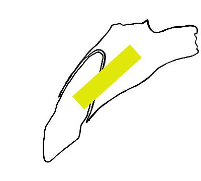 Umístění implantátu (žlutě) při tzv. okamžité rekonstrukci. Tilted implantát směřuje do palatinální lamina dura.