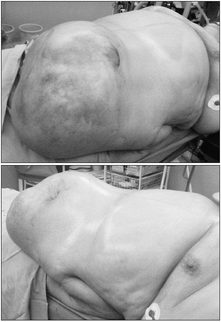 ,2: Inkarcerovaná ventrálna hernia – predoperačný nález Fig. 1., 2. Incarcerated ventral hernia – preoperative finding