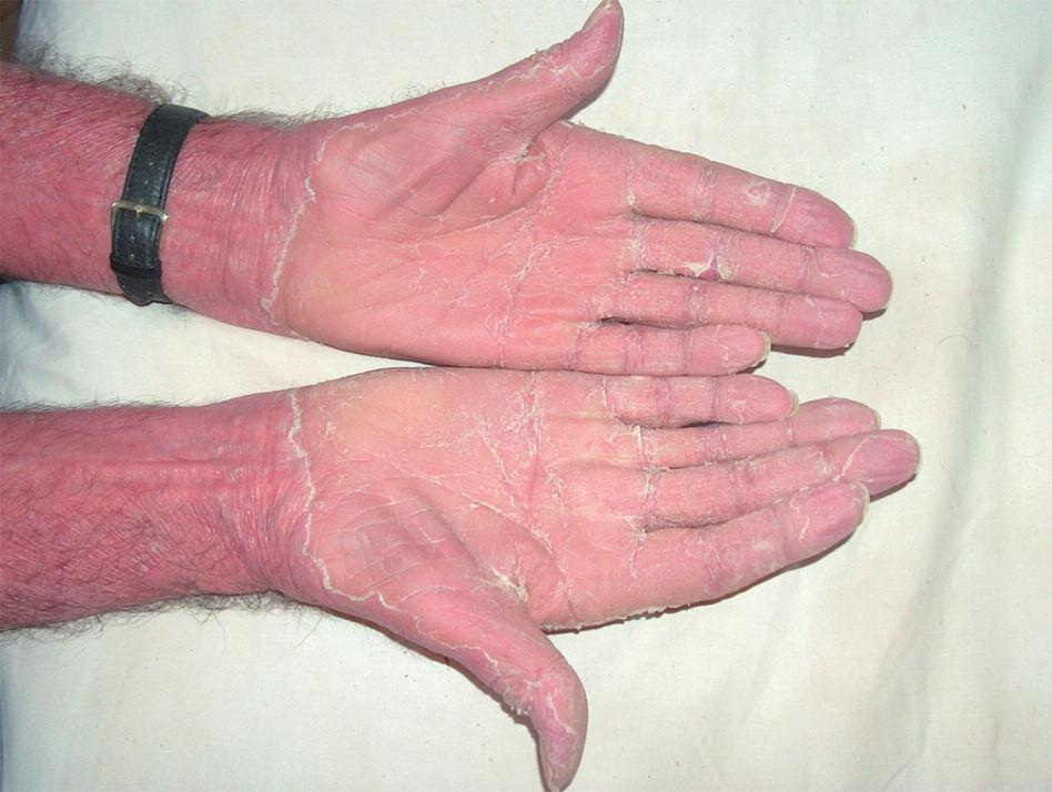 Difuzní, plátovité, oranžové hyperkeratózy dlaní s tvorbou prasklin
