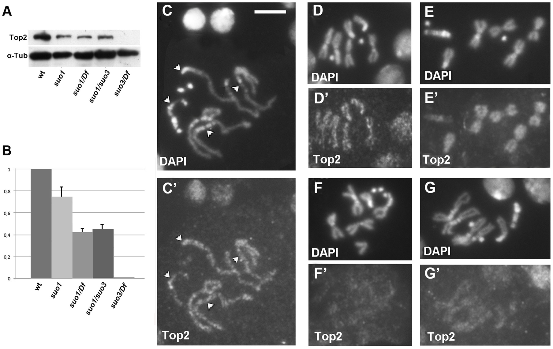 Top2 localization in wild type and <i>Top2</i> mutant larval brain cells.