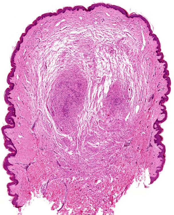 Neurofibrom, hematoxylin-eozin, původní zvětšení 20x.