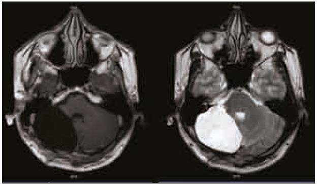 Kontrolní MR vyšetření mozku v T1 vážené sekvenci s kontrastní látkou a v T2 vážené sekvenci s odstupem 9 měsíců po operaci.