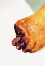 Diabetická noha s gangrénou 3 prstů a amputační plochy po snesení 1. prstu levé nohy.