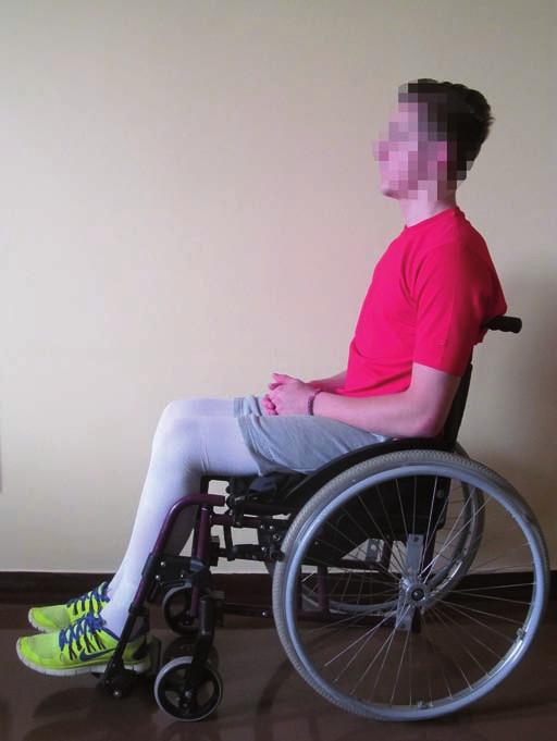 Postura paraplegického pacienta vsedě na vozíku. Pánev je nastavená ve středním postavení, zatížení je více na sedacích hrbolech. Trup je napřímený, hlava držena v ose páteře. Fig. 3. Posture of a paraplegic patient sitting in a wheelchair.  The pelvis in a middle position, the weighting is shifted towards the sit bones. The trunk is straightened, the head held in the axis of the spine.
