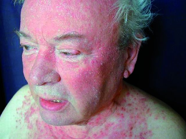 Rosacea granulomatosa s postižením obličeje a krku (Foto H. Duchková)