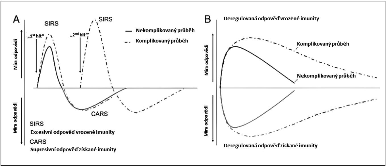 Imunitní homeostáza v sepsi – klasické vs. inovativní pojetí
