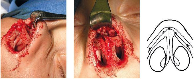 Vľavo: pohľad z boku chrupkové štepy sutúrované k zvyšku alárnej chrupky v žiadanej polohe. V strede: ďalší chrupkový štep vložený ako výplňový materiál na dorzum nosa do podkožného tunela. Na konci rekonštrukcie nasleduje sutúra dómov v novej pozícii. Vpravo: schéma augmentácie v rozsahu celého laterálneho ramena.