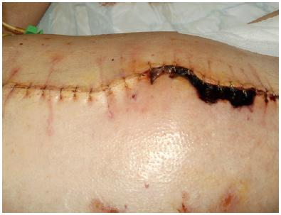 Ošetření sutury s nekrózou