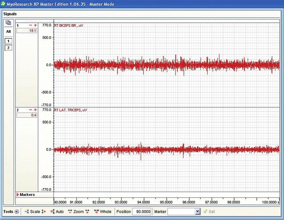 Příklad nativního EMG m. biceps brachii (horní záznam) a m. tricps brachii (dolní záznam) při držení činky bez aktivované vibrace.