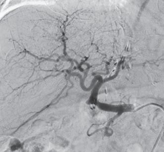 Obr. 1a. Kazuistika 1 – pacient před PTA.
