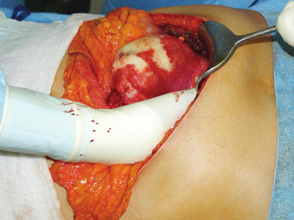 Peroperační záběr postižení levého laloku jaterního Fig. 1: Perioperative image of the left hepatic lobe involvement