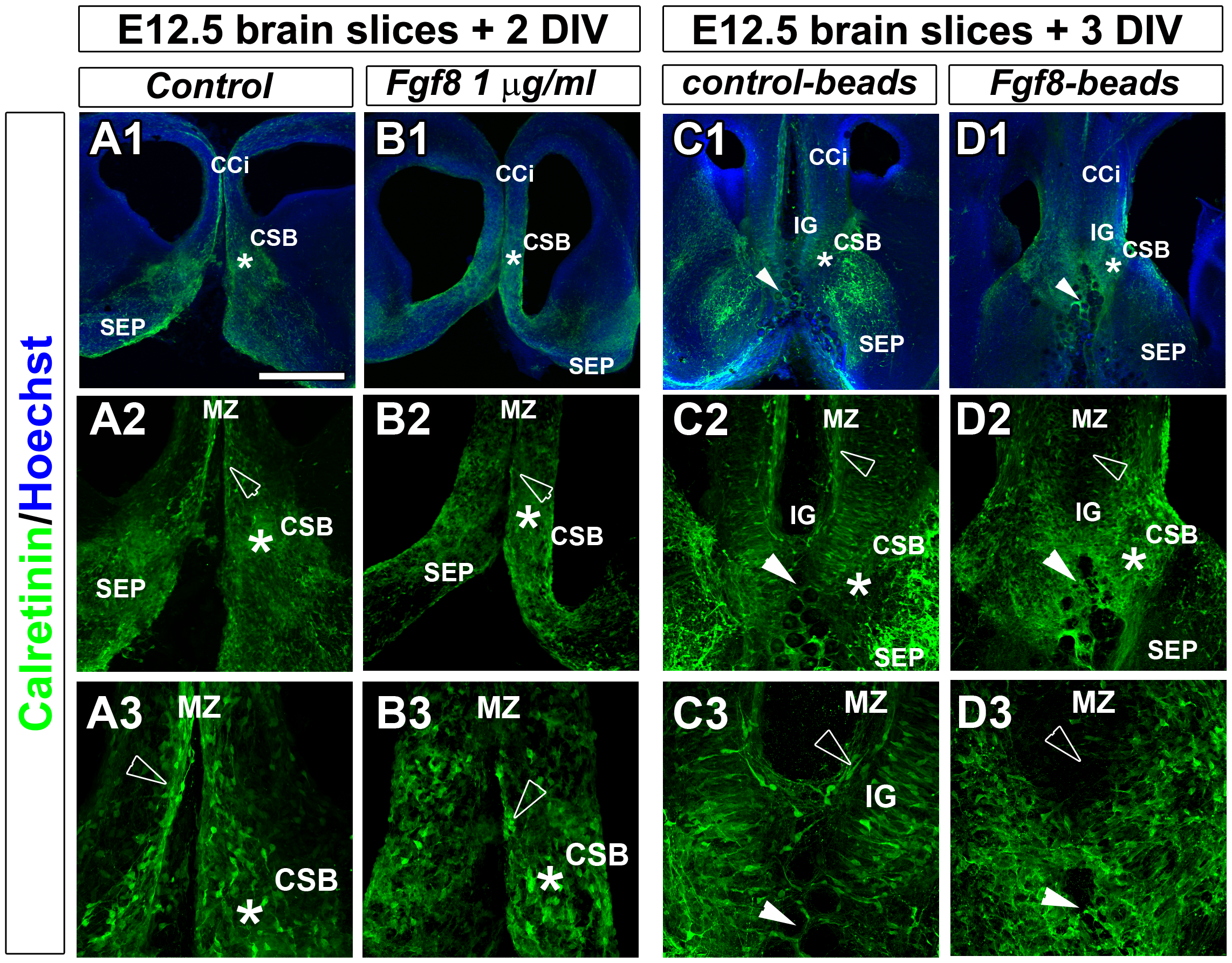 Fgf8 ectopic expression causes severe guidepost neurons mislocalization at the midline.