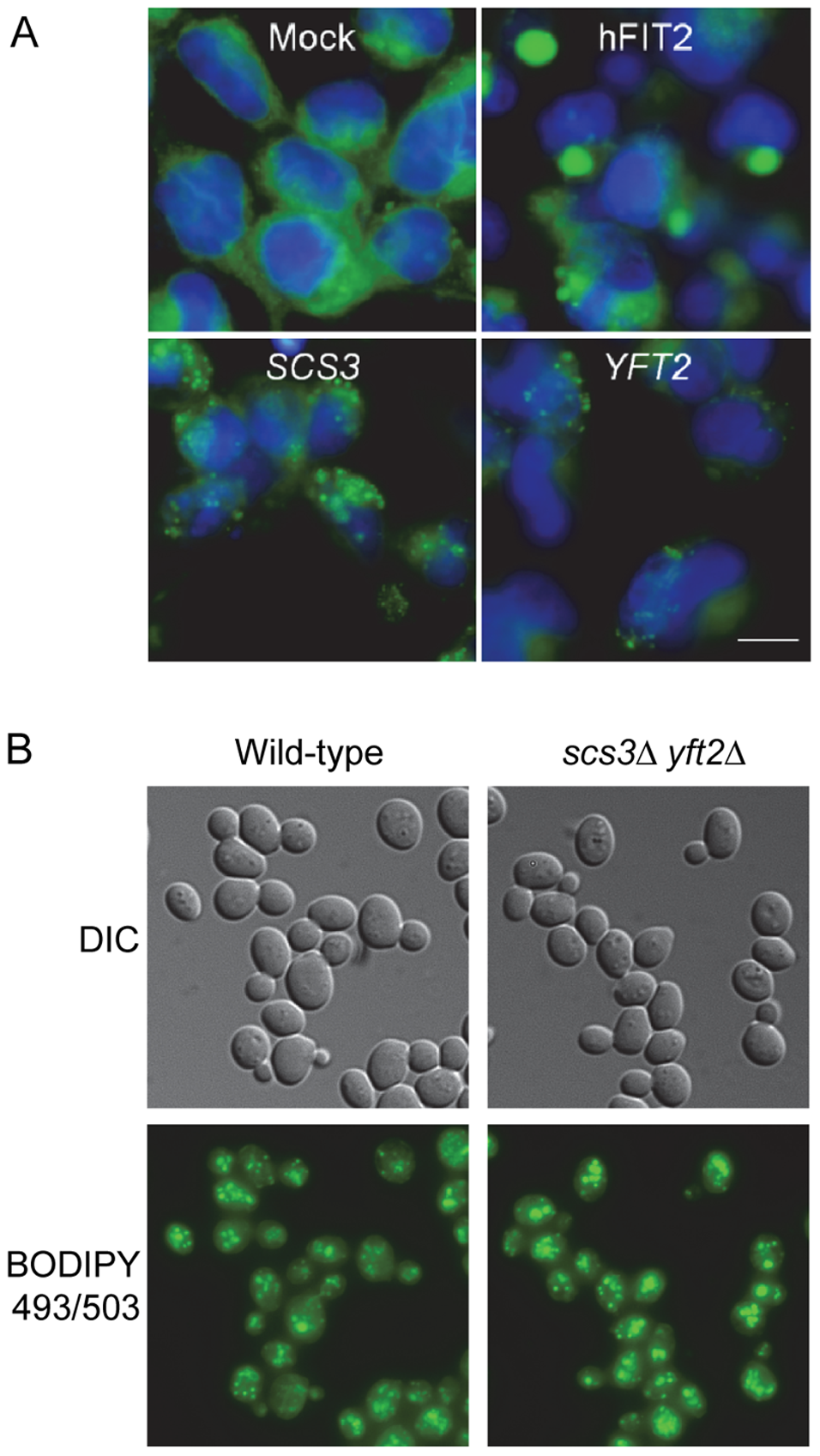 Lipid droplets in human cells expressing <i>SCS3</i> and <i>YFT2</i> and in yeast gene-deletion strains.