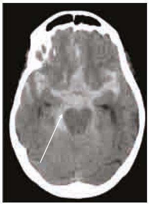 Masivní subarachnoidální krvácení (šipka) u warfarinizova