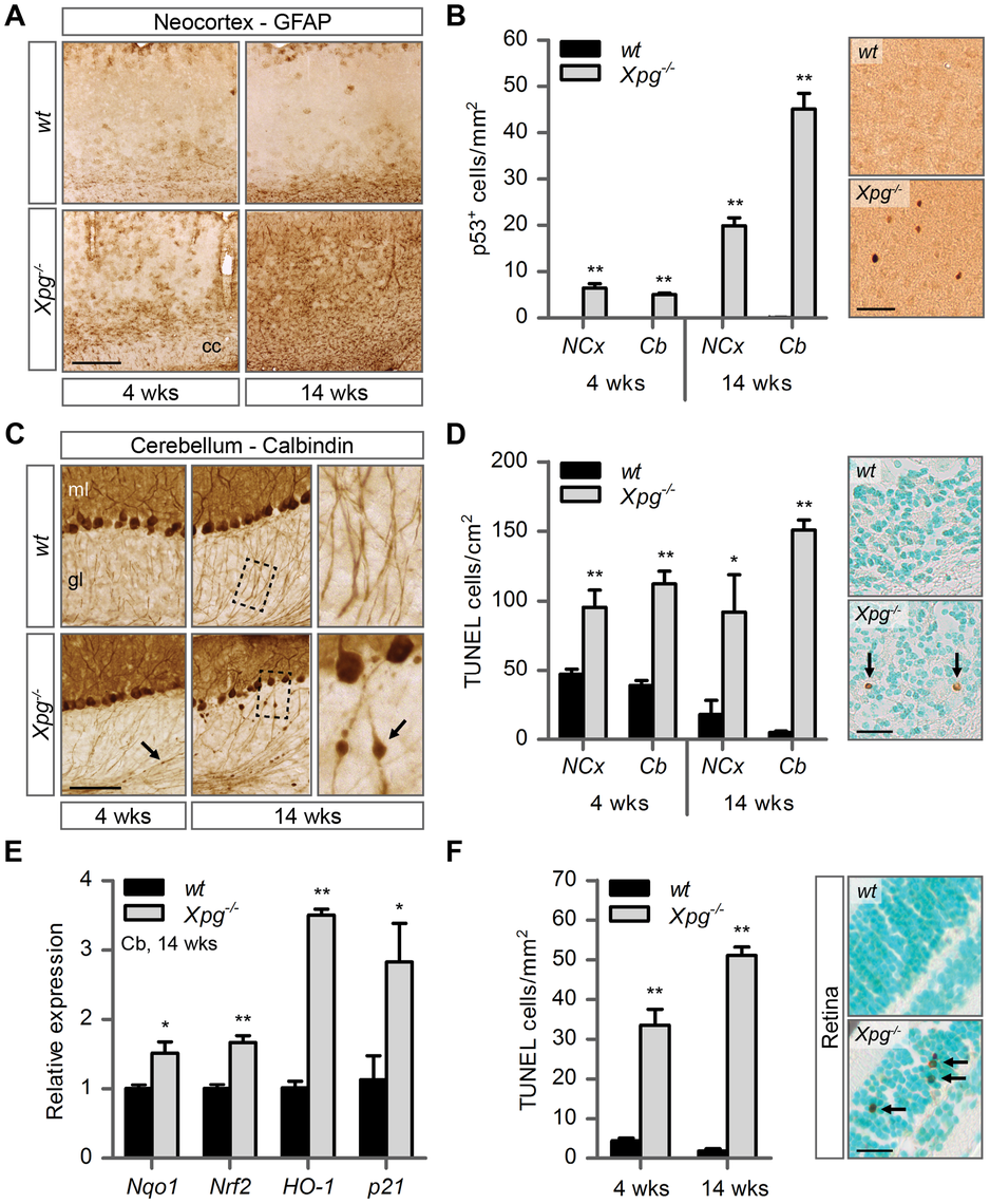 Increased cell death, degeneration and stress responses in post-mitotic tissues of <i>Xpg<sup>−/−</sup></i> mice.