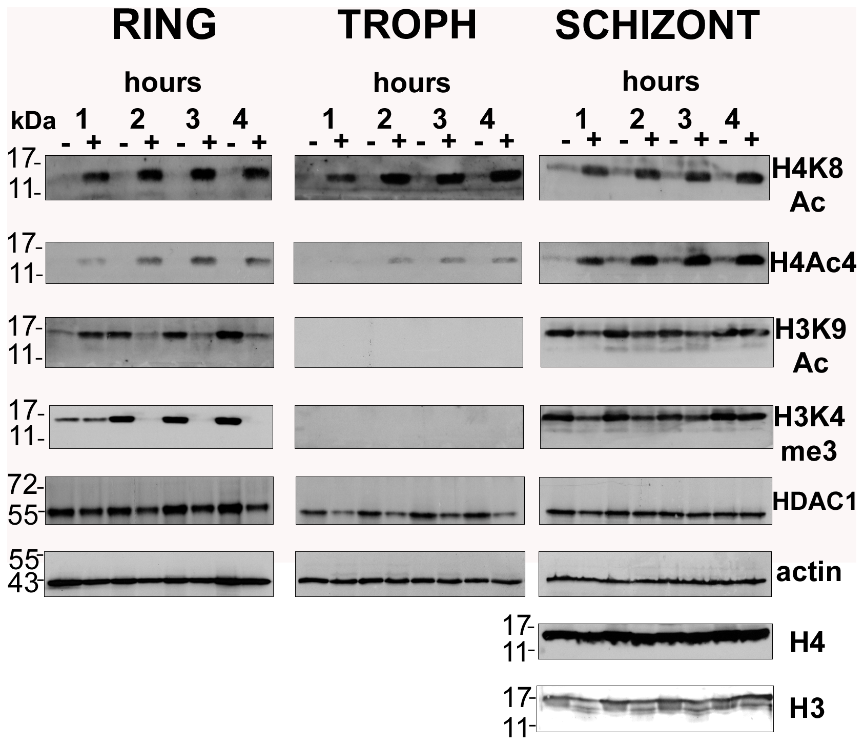 Global histone hyperacetylation induced by apicidin.