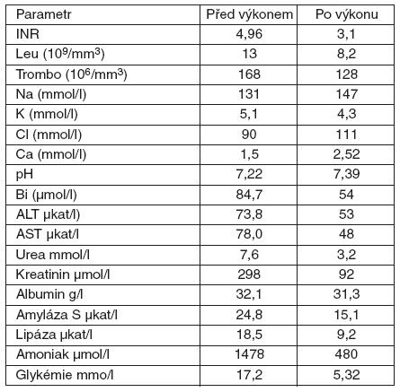 Dynamika laboratorních parametrů u 7leté pacientky s akutním jaterním selháním