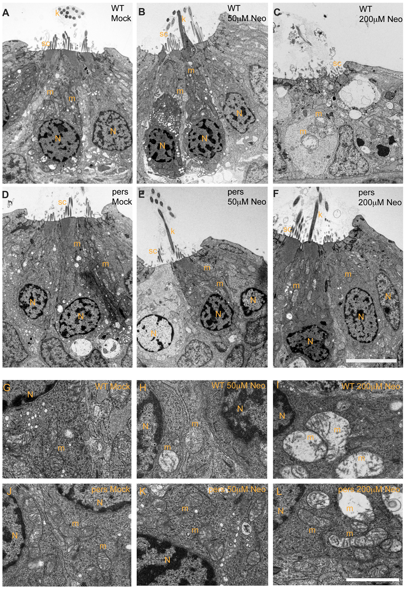<i>persephone</i> hair cells have normal morphology and show only modest ultrastructural changes when treated with neomycin.