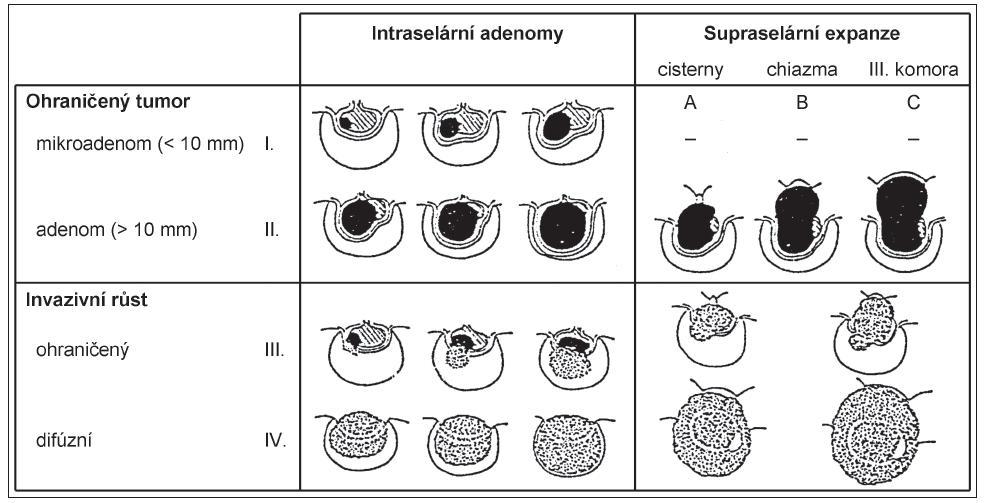 Schéma 1. Chirurgická klasifikace adenomů hypofýzy dle Hardyho.