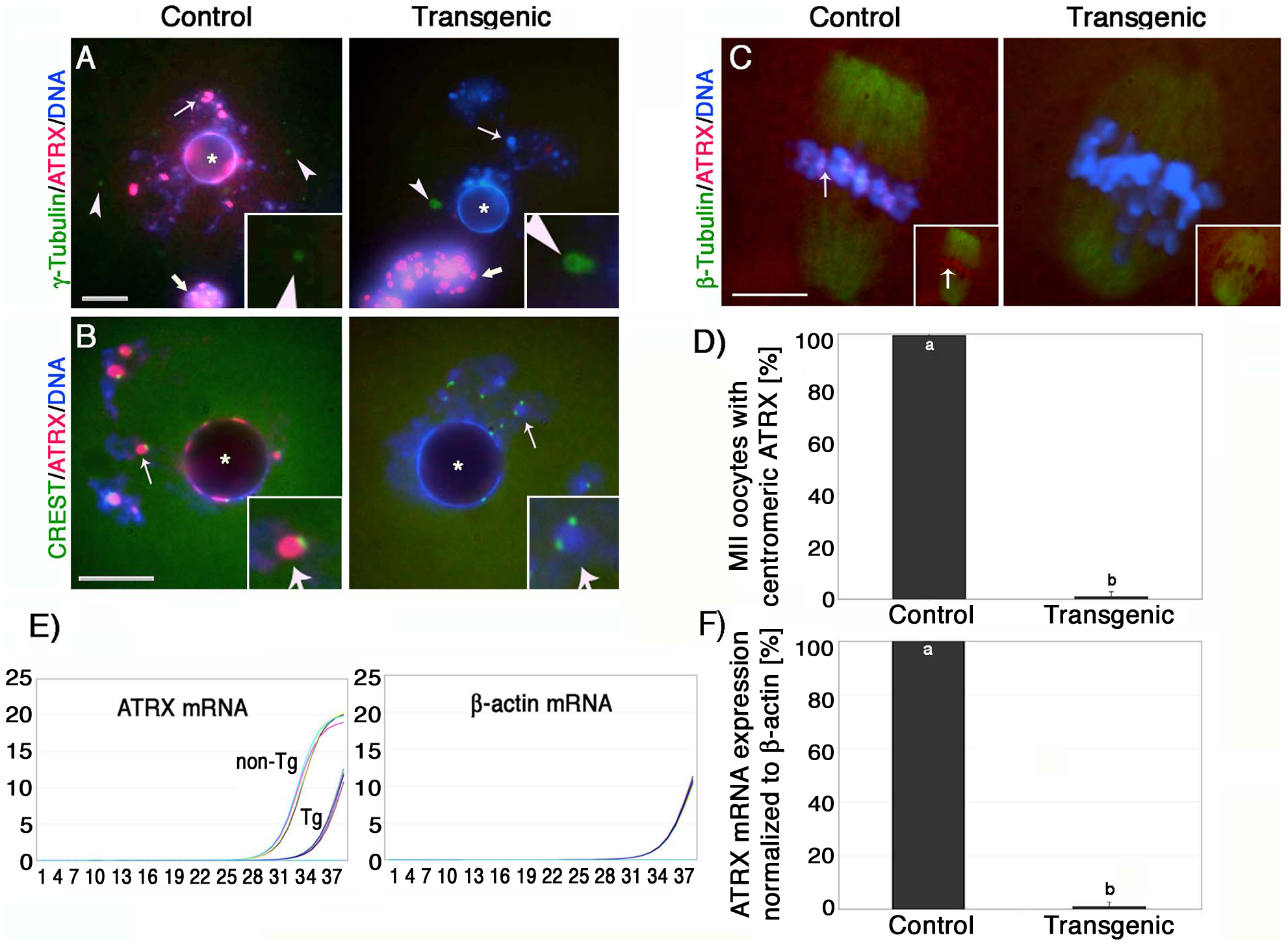 Oocyte-specific ablation of the ATRX protein in a transgenic RNAi mouse model.
