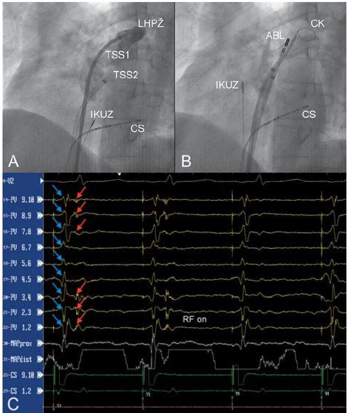 A – nástřik levé horní plicní žíly kontrastní látkou jedním z transseptálních zavaděčů (TSS1) v levé šikmé projekci 45°, B – umístění cirkulárního katétru (CK) do levé horní plicní žíly, C – eliminace elektrických potenciálů pocházejících z levé horní plicní žíly (záznamové stopy PV 1,2 – PV 9,10). Při stimulaci z koronárního sinu jsou v signálech snímaných cirkulárním katétrem umístěným v plicní žíle patrny dva signály: potenciály z levé síně (modré šipky) a ostré potenciály z plicní žíly (červené šipky). První dva stimulované stahy prokazují vedení elektrické aktivity z levé síně do plicní žíly. Po zahájení aplikace radiofrekvenční energie (ABL katétr) dochází k eliminaci elektrického vedení.