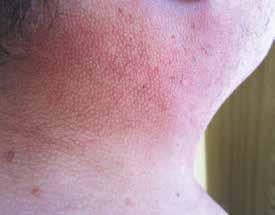Fotografie kůže pacienta z blízka