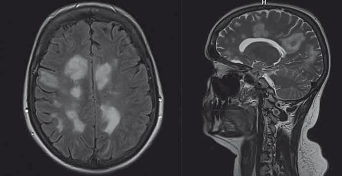 Iniciální MR mozku (koronární a sagitální řezy) u pacientky diskutované v kazuistice 2  s pozitivitou anti-NMDAR klinicky manifestující se non-konvulzivním epileptickým statem. Fig. 1. Initial brain MRI (coronary and sagittal sections) in a patient discussed in Case 2 with anti-NMDAR positive clinical manifestations of non-convulsive status epilepticus.