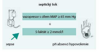 Septický šok dle SEPSIS-3
