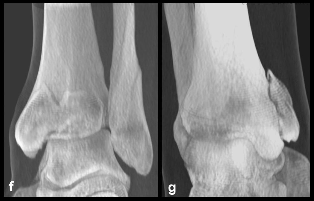 Odlomená zadní hrana tibie – Typ 3 (posteromediální) a, b, c – rtg snímky ukazující zlomeninu fibuly Weber B, atypickou vertikální zlomeninu vnitřního kotníku, odlomení zadní hrany nesoucí přibližně čtvrtinu kloubní plochy distální tibie, d – transverzální CT řez, e – sagitální CT řez, f – 3D CT rekonstrukce, dorzální pohled, g – 3D CT rekonstrukce, anteromediální pohled. Z rekonstrukcí je patrné, že je odlomena zadní hrana včetně zadního kolikulu mediálního kotníku a laterálně dorzální čtvrtina incisury tibie.