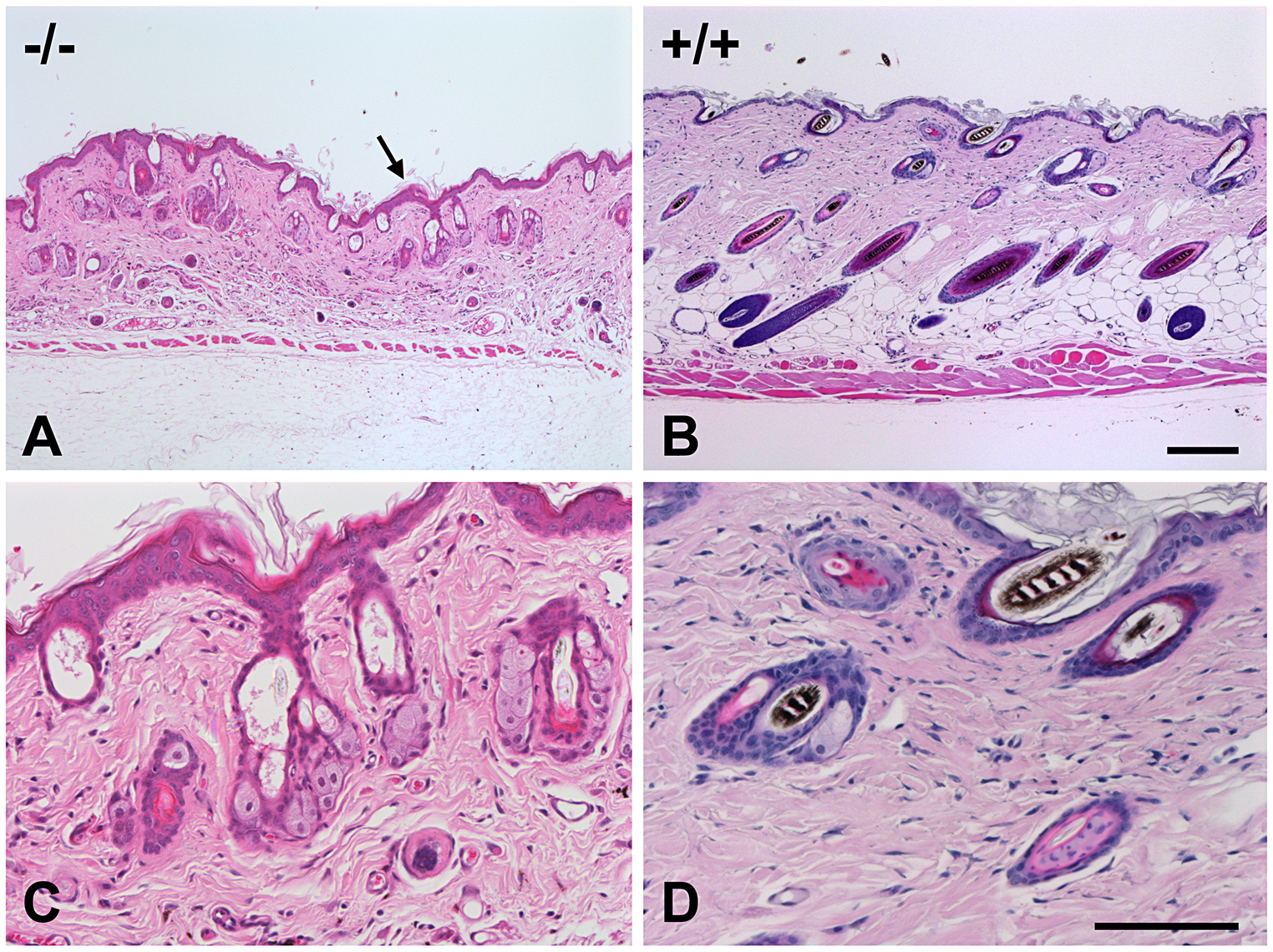 Skin histopathology of the affected mice.