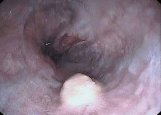Endoskopický obraz granulárnobunkového tumoru ezofagu u 49-ročného prezentovaného pacienta. Tumor mal vzhľad asi 8 mm veľkého polypoidného útvaru žltkavej farby lokalizovaného asi 2 cm nad kardiou. Fig. 1. An endoscopic view of oesophageal granular cell tumour in the 49-year-old presented patient. The tumour appeared as a yellowish polypoid mass of aproximately 8 mm, localised 2 cm above cardia.