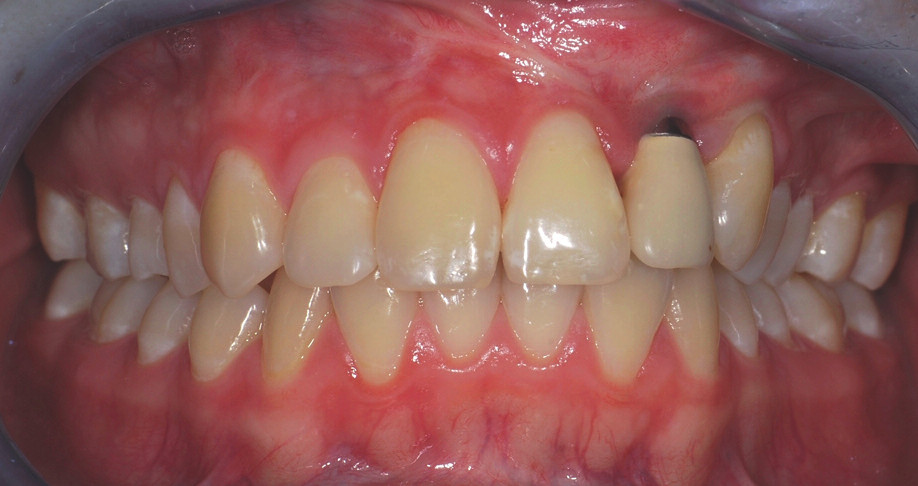 Obr. 8. Dospělá pacientka s celkovým levostranným rozštěpem po komplexní terapii vady (A).V místě 22 byl po opakované spongioplastice alveolárního výběžku zaveden dentální implantát (B). Pacientka je po ortodontické přípravě fixním aparátem na implantaci a v současné době nosí snímací aparát na noc. Viditelná kovová část implantátu esteticky neruší vzhledem k nízké linii úsměvu pacientky.