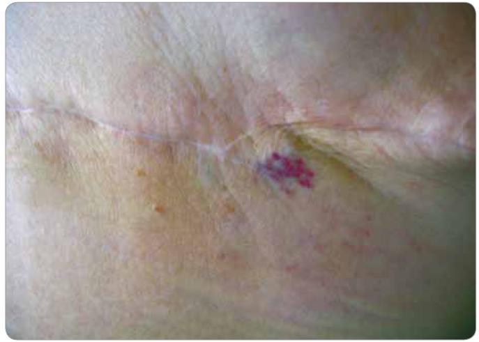 Lokální recidiva hemangiosarkomu (pacient č. 2). Nafialovělé papulky v laterální části jizvy po ablaci.