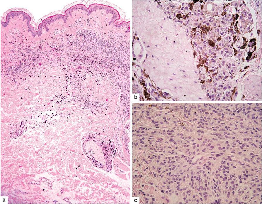 Kombinovaný névus a – v horním koriu je intradermální névus v detailu zachycený na obrázku c, pod ním je plexiformně uspořádaný hluboko penetrující névus v detailu zachycený na obrázku b.