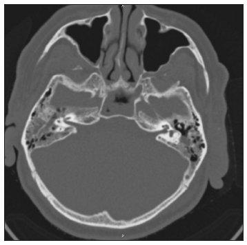 CT pyramid před zahájením léčby.