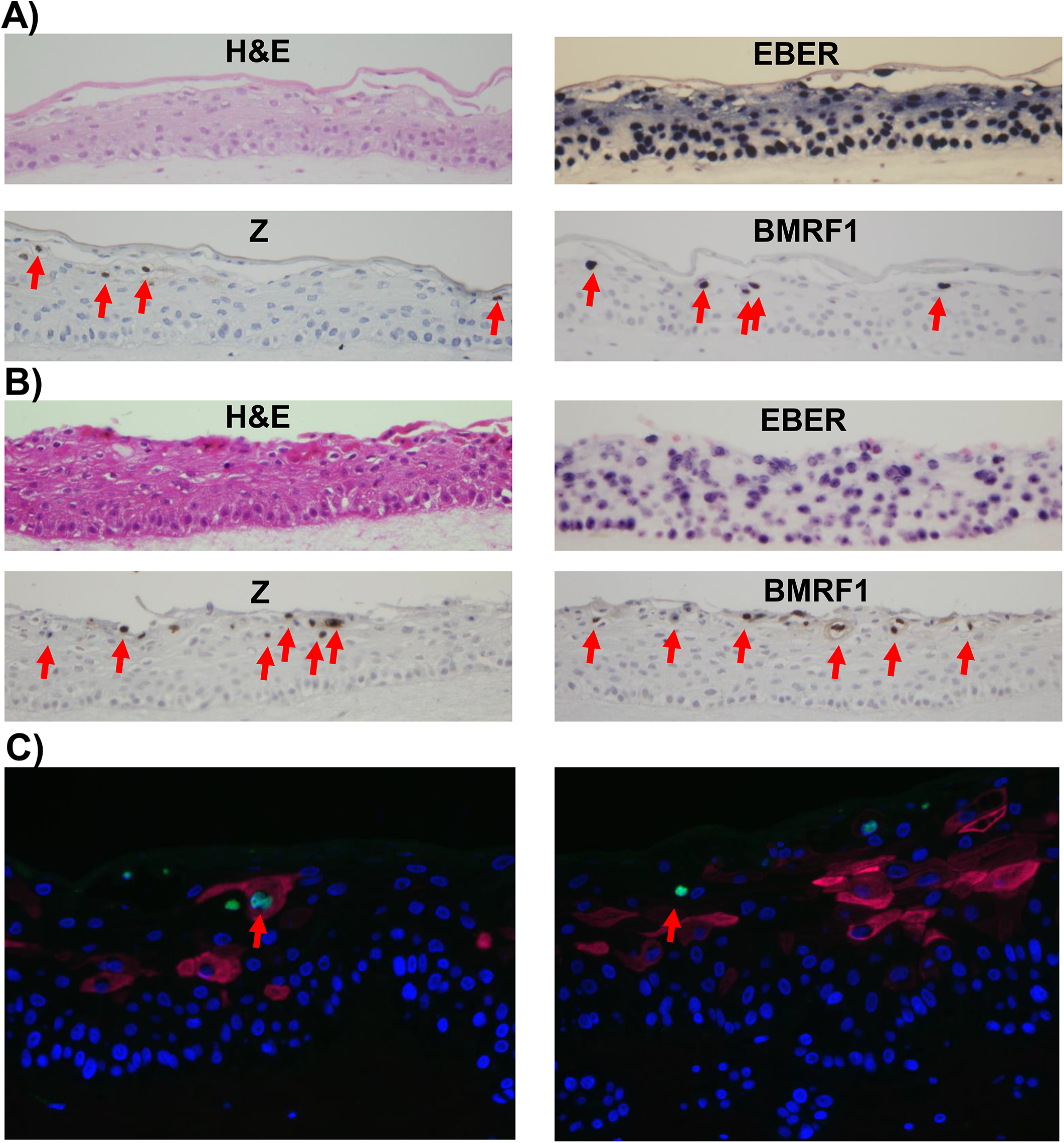 Lytic EBV protein expression in NOKs-Akata cells is restricted to the more differentiated cell layers.