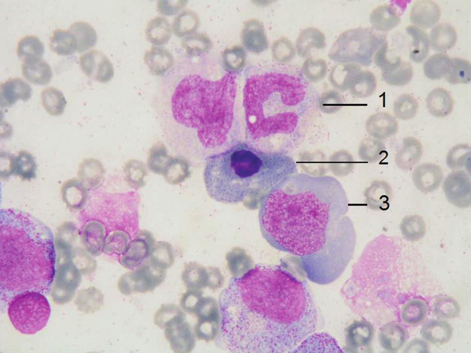 Obraz megaloblastické přestavby kostní dřeně u našeho nemocného – gigantická tyč (1), megaloblast ortochromní s bazofilním tečkováním (2), megaloblast polychromní (3), barvení May-Grünwald Giemsa, zvětšení 1000 x