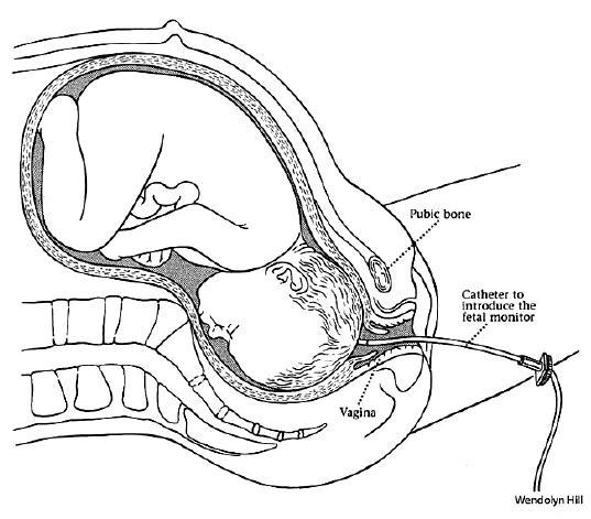 Technika transcervikálneho zavedenia skalpovej elektródy [5]