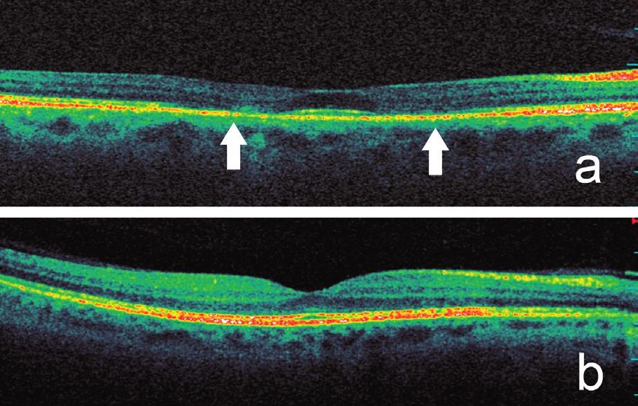 Optická koherenční tomografie se spektrální doménou prokazuje a) pokles výšky zevních vrstev sítnice v mezikruží okolo normální fovey a ztrátu hyperreflexivní linie spojení vnitřních a zevních segmentů fotoreceptorů (označeno šipkami), b) pro srovnání normální SD‑OCT scan makuly