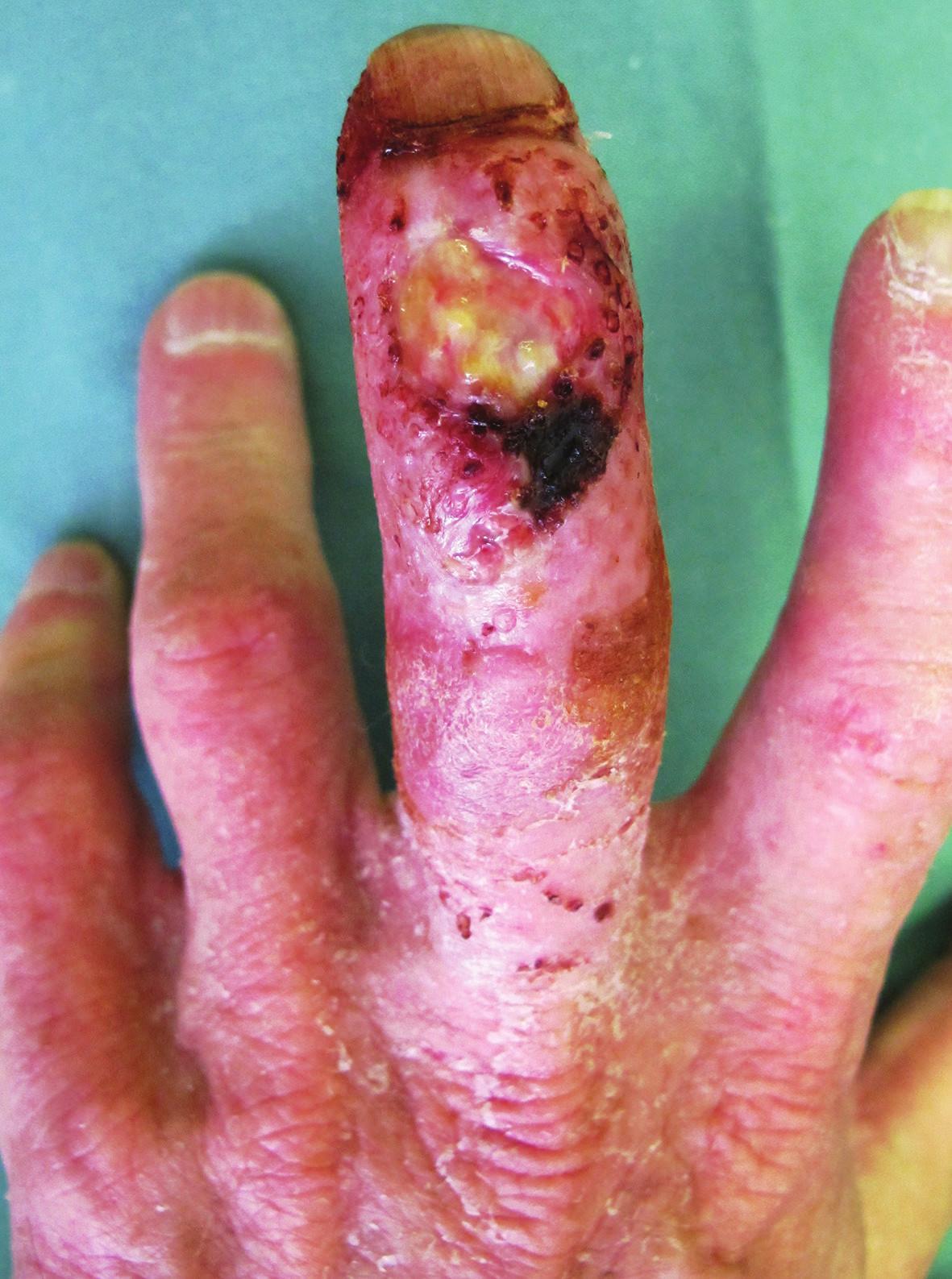 Rozsáhlé hnisavé ložisko na dorzu 3. prstu levé ruky