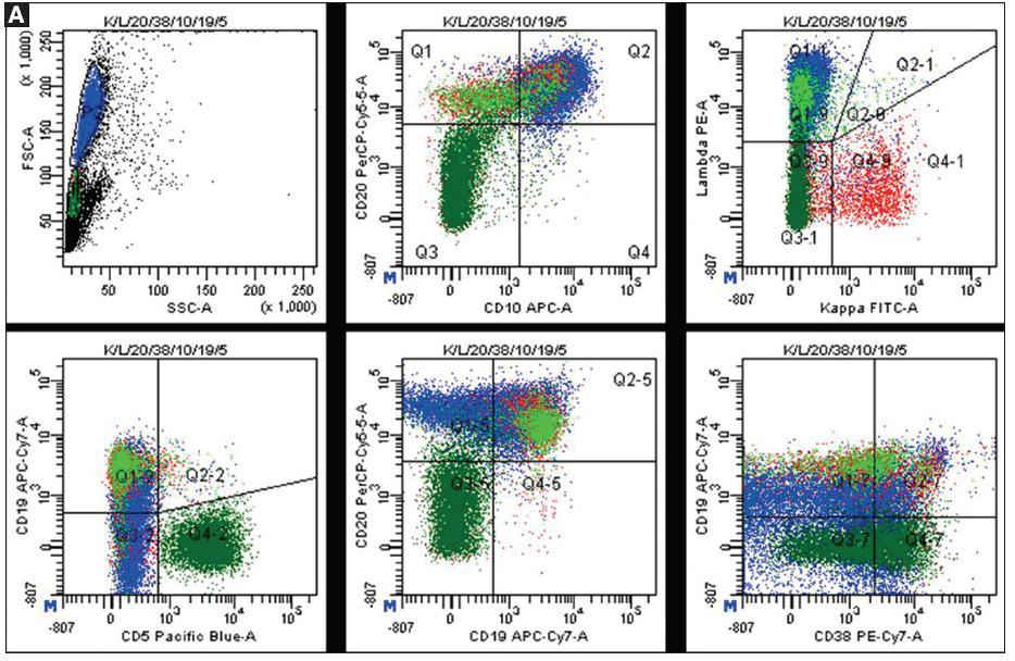Ukázky výsledků vyšetření průtokovu cytometrií.  A. <em>Nativní bioptický odběr z ilea se suspekcí na non-Hodgkinský lymfom.</em> Bioptický vzorek ilea byl po mechanické homogenizaci naznačen komerčně dodávanými fluorescenčními protilátkami (kappa FITC / lambda PE / CD20 PerCPCy5.5 / CD38 PC7 / CD10 APC / CD19 APCCy7 / CD5 PB). Cytometrická analýza prokázala klonální populaci velkých lymfocytů (buňky označené modře) s fenotypem CD19+ CD20+ lambda+ CD10+ CD5- CD38-/+. Kromě nádorových buněk je přítomna populace polyklonálních malých B-lymfocytů (zobrazeny červeně a světle zeleně) a populace malých T-lymfocytů (tmavě zelené buňky). Nález průtokové cytometrie zjistil infiltraci ilea high-grade folikulárním lymfomem.