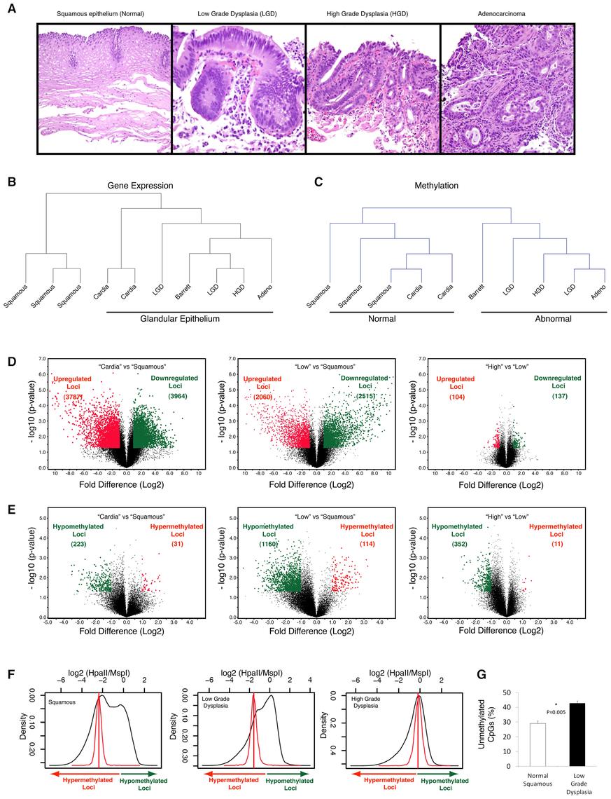 Global hypomethylation is seen early during esophageal carcinogenesis.
