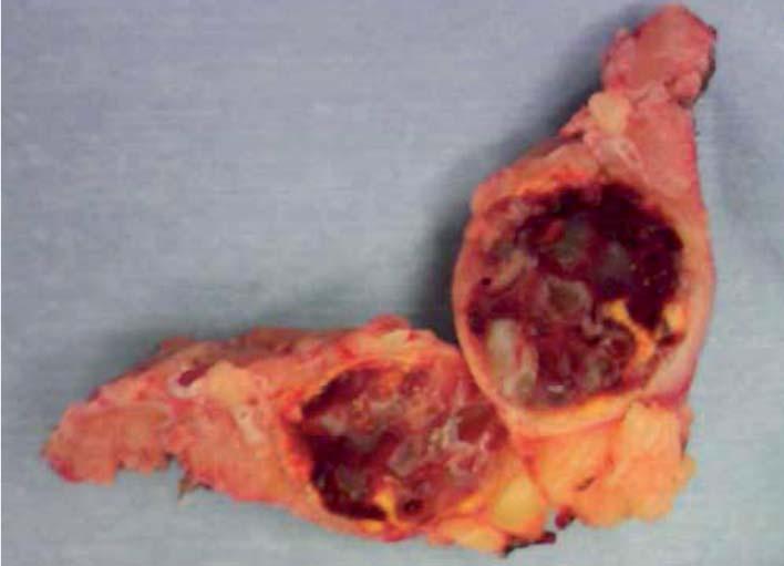 Schéma 4. Levostranný tumor – karcinom z jasných buněk G1, pT1, 19 g.